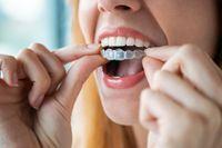 Så bleker du tänderna enkelt hemma - beställ här och få vitare tänder på 30 minuter.
